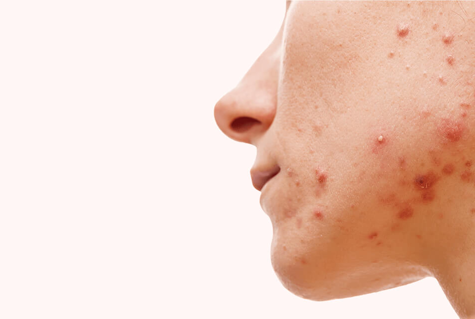 acne on face, acne, acne removal, girl with acne