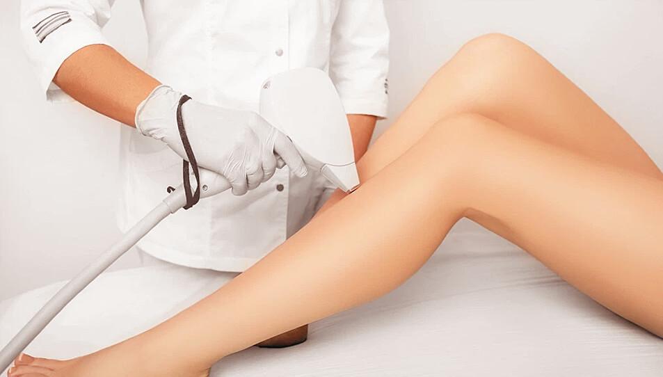 woman's legs, laser hair removal procedure