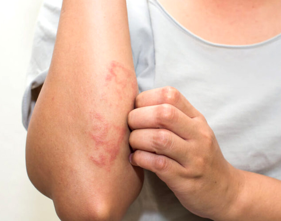 eczema flare-ups, treatment for eczema